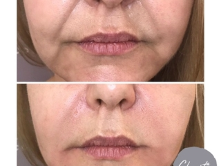 Clarity Cosmetics Before and After